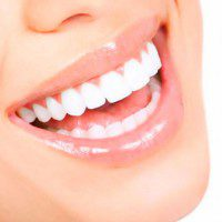 Leonor Navarrete Clinica Dental - Carillas de porcelana y Composites